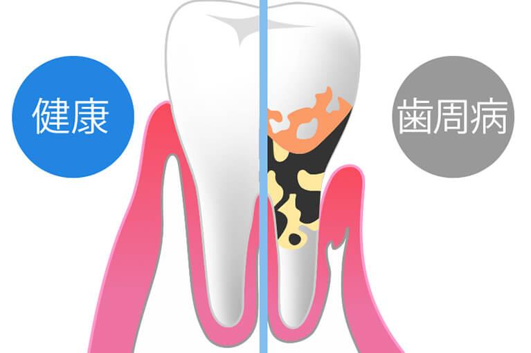 歯周病の予防に関して