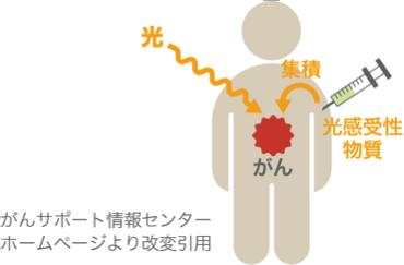 光力学療法